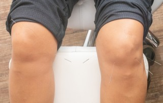 Acupuncture/Dry Needling on a knee