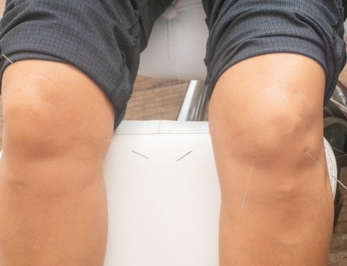 Acupuncture/Dry Needling for Knee Osteoarthritis